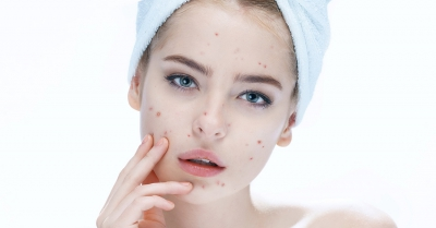 Beauty Tips for getting rid of acne